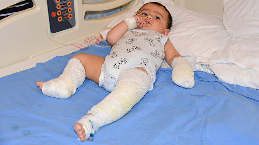 Ağrıda 10 aylık bebeğin üzerine çaydanlık devrildi