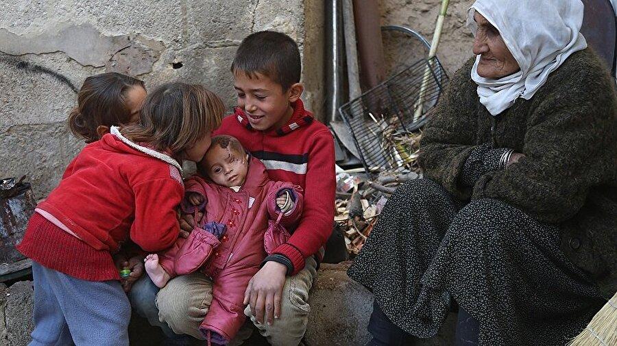 Esed rejiminin saldırısında Doğu Guta'da sol gözünü kaybeden Kerim bebek dayanışmasına on binlerce insan destek verdi.