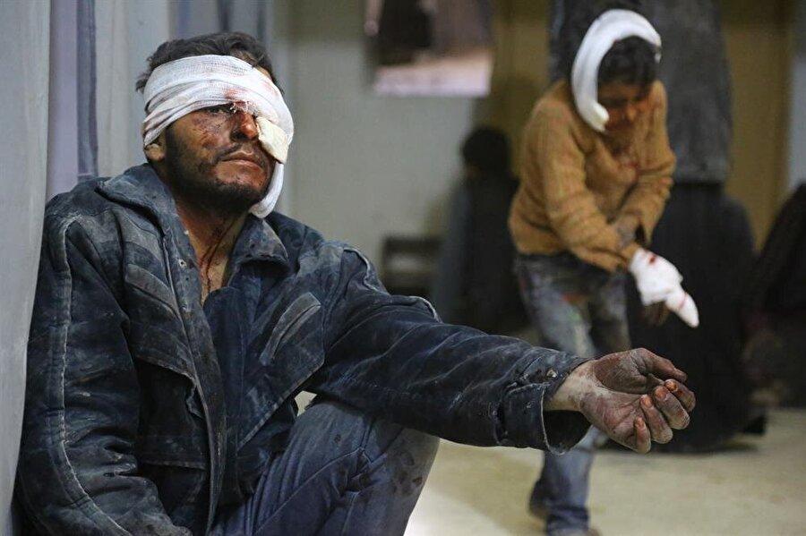 UNICEF, 10 Aralık'taki açıklamasında, 7-17 yaşlarındaki 137 çocuğun tedavileri yapılmak üzere acilen tahliye edilmesi gerektiğini bildirdi.