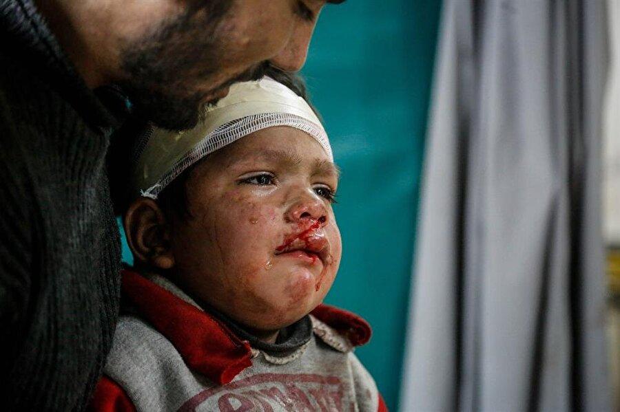 Rejimin son 8 aydır sıkılaştırdığı abluka, yarısı çocuk 400 bin sivile iç savaşın en büyük acılarını yaşatıyor.