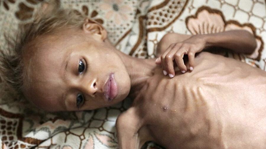 Suudi Arabistan ve İran'ın savaş arenasına dönüşen Yemen'de en büyük sıkıntıyı siviller çekiyor. On binlerce çocuk, açlıktan ölüm tehlikesiyle karşı karşıya.