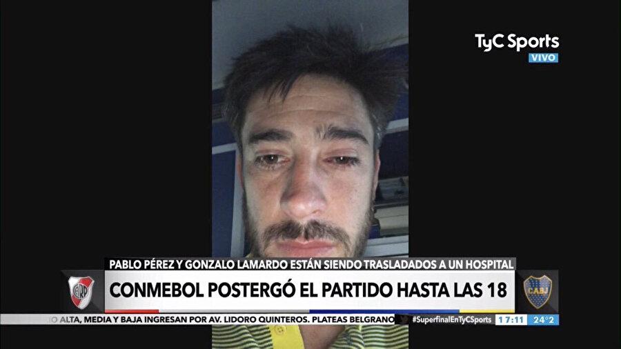Pablo Pérez'in yüzündeki şişlikler gözden kaçmıyor.n