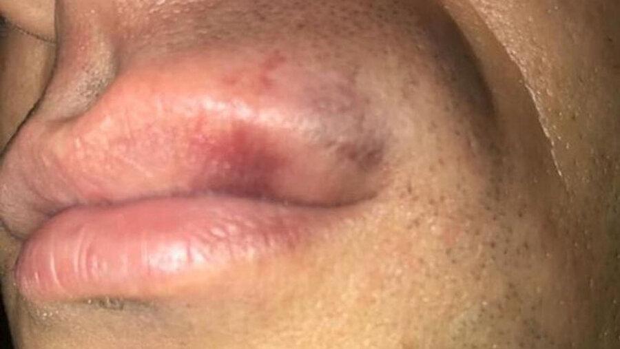 Maçın hakemi Çelik'in dudağı darbe aldıktan sonra bu şekilde görüntülendi.