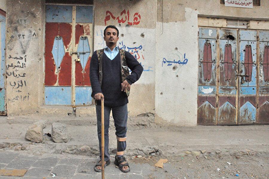 Yemen'de sağlık hizmetleri de sağlıklı bir şekilde alınamıyor.