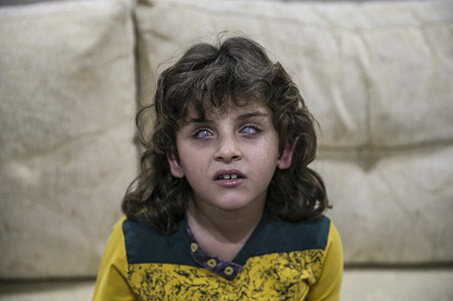 Suriye'nin Doğu Guta bölgesine Esed rejimi tarafından savaş uçaklarıyla yapılan saldırıda görme yetisini büyük ölçüde kaybeden 8 yaşındaki Amir Karsa...