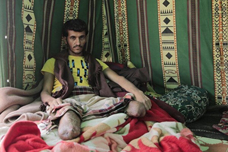 Bacaklarını kaybeden Hatice Teyze ve oğlu Sanâ'daki çatışmalardan kaçıp göç edenlerden.