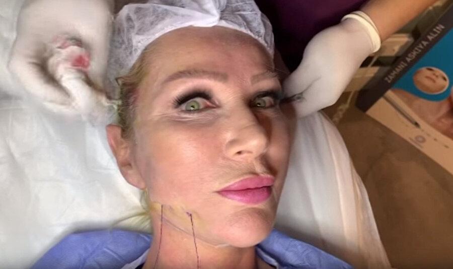 Sayan, YouTube kanalında yayınladığı videoda yüzüne estetik operasyon yaptırdı.