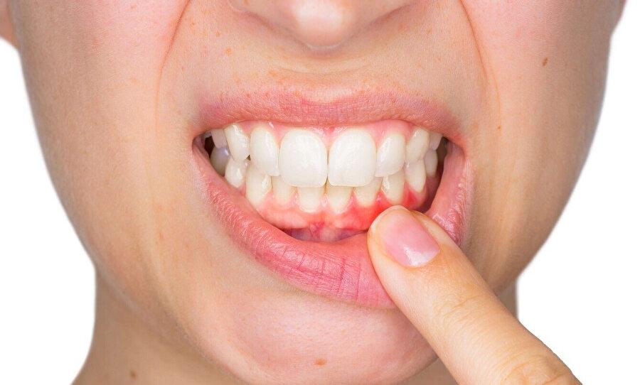 Bayramda yediğiniz tatlılardan sonra mutlaka dişlerinizi fırçalayarak koruyun.