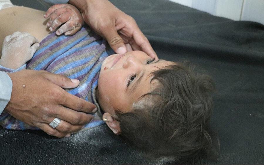 Hava saldırılarından sonra hastanede tedavi gören yaralı bir çocuk.