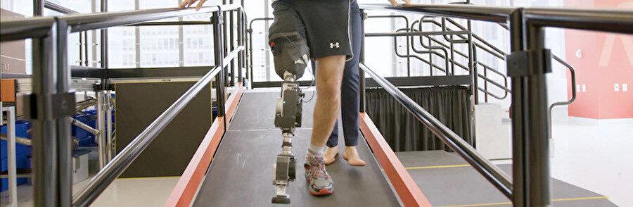 Protez bacak esnek hareket imkanıyla da dikkati çekiyor.