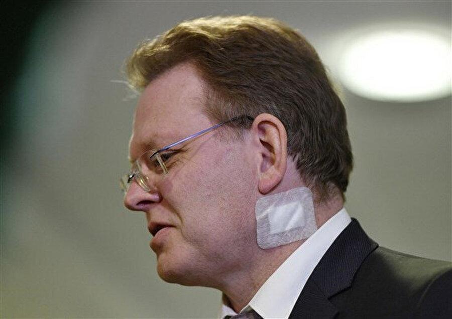 Belediye başkanı Andreas Hollstein, bir kebap restoranında bıçaklanmasından hemen sonra. Altena'daki bir basın toplantısında...