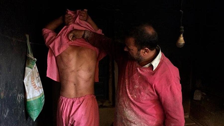 Gözaltında tutulduğu sırada işkence gören oğlunun yaralarını gösteren Keşmirli bir baba.