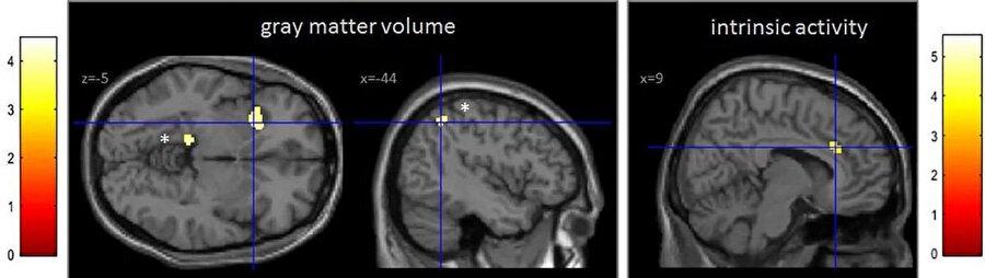 Akıllı telefon bağımlılığıyla birlikte beyindeki gri alan azalıyor.