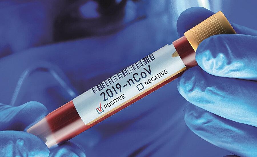 Koronavirüs ile polio salgını arasında bir alaka var mı?