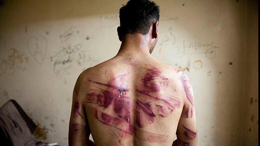 Suriyeli bir muhalif, 2012 yılında Halep'te rejim güçleri tarafından salıverilmesinin ardından sırtındaki işkence izlerini gösteriyor.