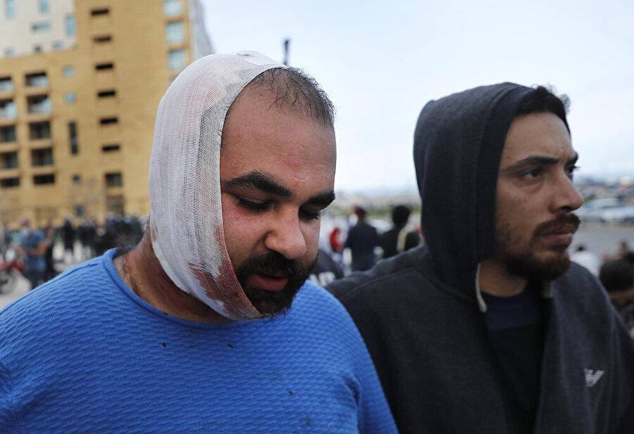 Polisin müdahalesi sırasında yaralanan bir gösterici arkadaşının yardımıyla ilerlerken görülüyor.