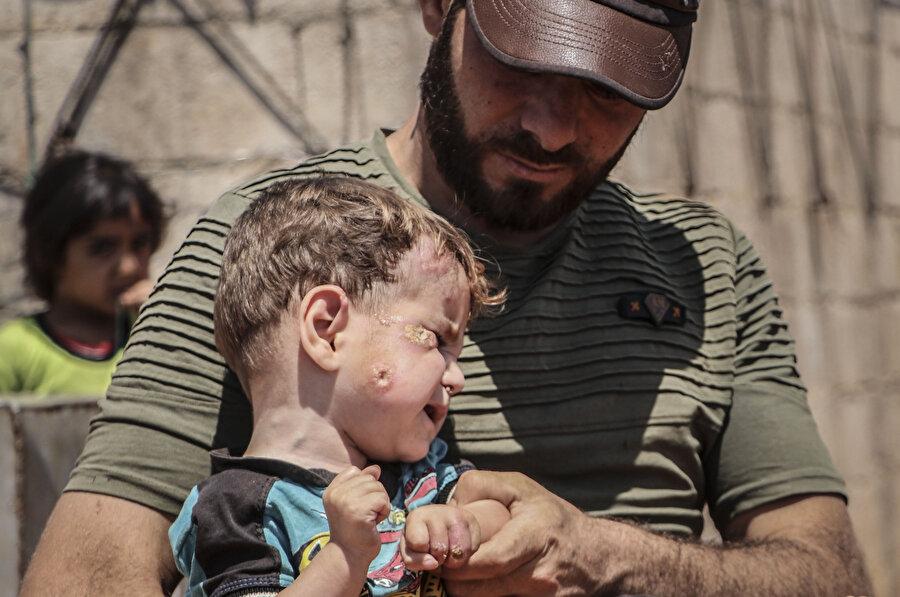Kamplarda hastalığa yakalanan bir çocuk.