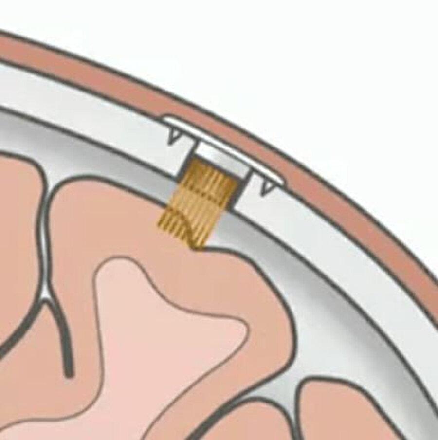 Neuralink'in asıl amacı insan beyni ve bilgisayarlar arasında bir köprü görevi görmek.