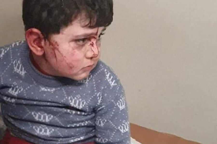 Yaralılar arasında çocuklar da var.