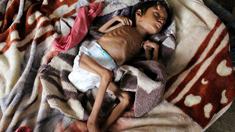 Yemenliler 'aç kalmıyor', açlıktan ölüyor.