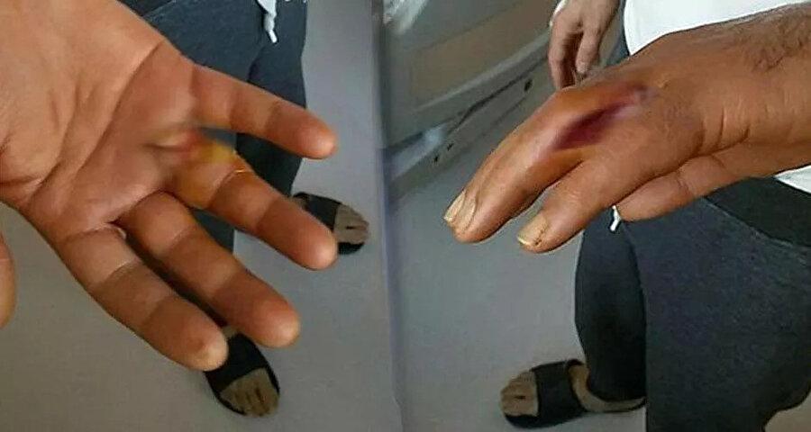 Türkmen ameliyat olarak fizik tedavi gördü