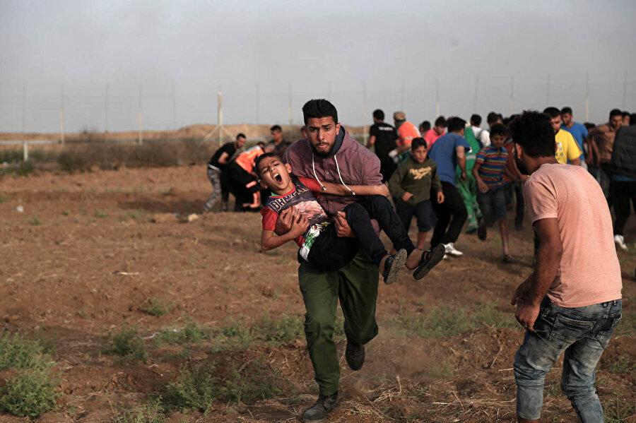 İsrail güçlerinin açtığı ateş sonucu yaralanan Filistinli bir çocuk.