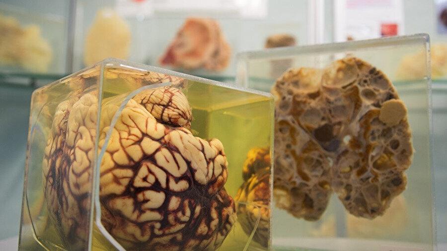 İnsan Hastalıkları Müzesi.