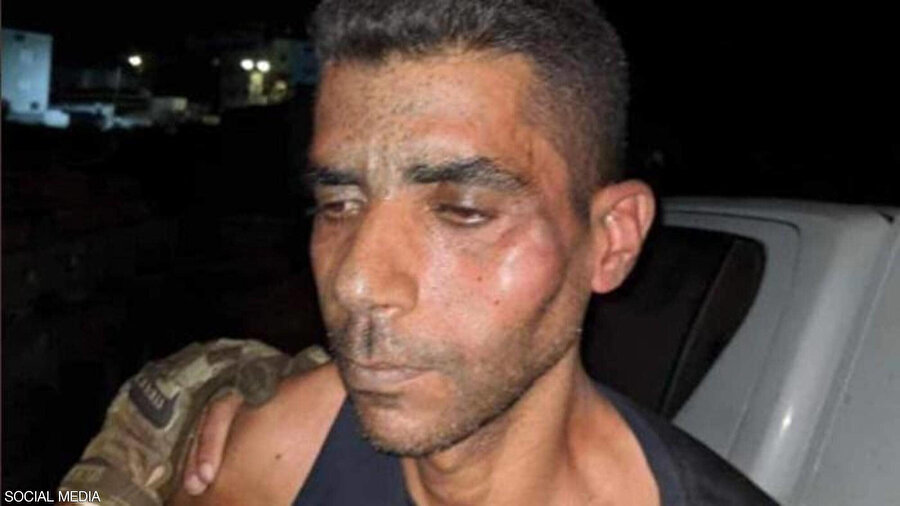 Fetih üyesi Filistinli tutuklu Zekeriya ez-Zübeydi'nin yakalandıktan sonra dayak ve işkenceye maruz kaldığı görülüyor.