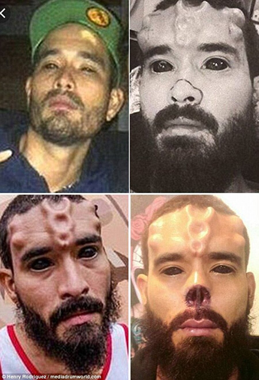 Burnunu kestirdi, alnına implant taktırdı                                                                            Mütevazi ve geleneksel bir aileden geldiğini açıklayan Henry Rodriguez, burnunun kestirdi, alnına implantlar yerleştirdi, vücudunu dövmelerle kaplattı.