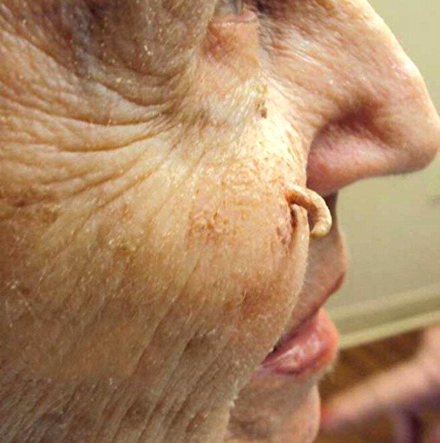 """Rhinophyma hastaları da geliyor                                                                                                                Hastaların arasında """"Rhinophyma"""" rahatsızlığına sahip kişiler de bulunuyor. Bu hastalık; burundaki derinin incelmesi ve üretilen yağ miktarının artmasıyla oluşan siyah noktalara sebep oluyor."""