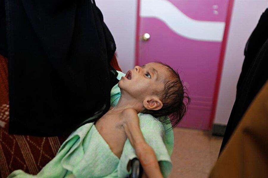 Kolera salgını Yemen'de en çok çocukları etkiliyor. Zira ülkede 5 yaş altı çocukların koleraya yakalandı, yüzde 17'si de koleradan hayatını kaybetti.