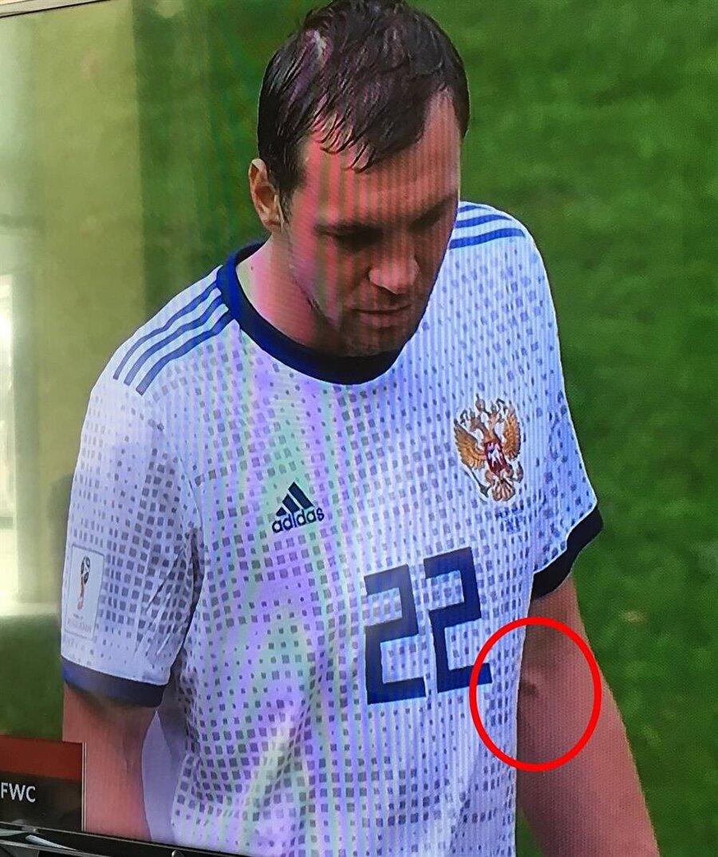 Öte yandan mücadele içerisinde Dzyuba'nın çekilen bir fotoğrafında kolunda iğne izi olması sosyal medyada tartışma konusu oldu.