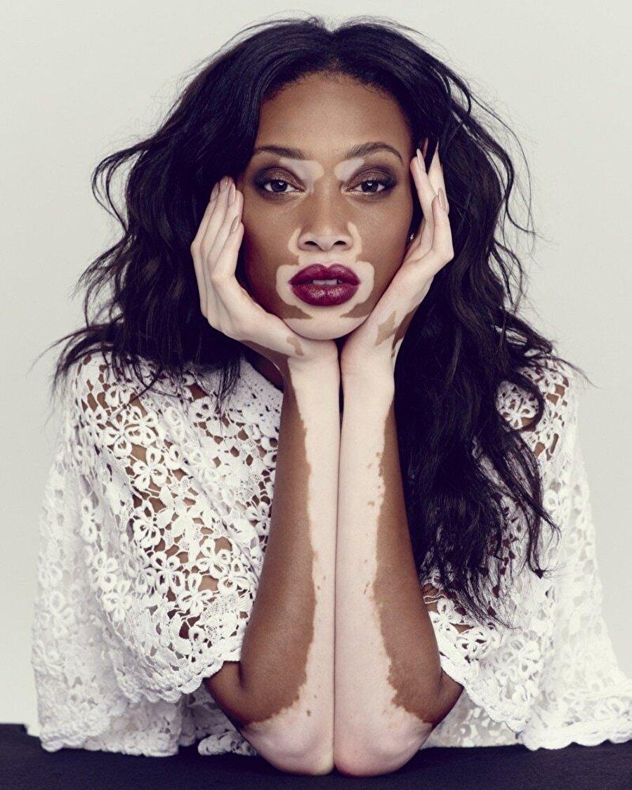 Cilt problemleri                                                                                                                 Yapılan birçok araştırmada D vitamininin vitiligo ve sedef hastalığıyla savaştığı görüldü. Greenmedinfo'dan aktarılanlara göre 2013 yılında 16 vitiligo ve 9 sedef hastasına D vitamini takviyesi verilmiş. Takviyenin ardından hastalıklarının ve belirtilerinin hafiflediği görülmüş.