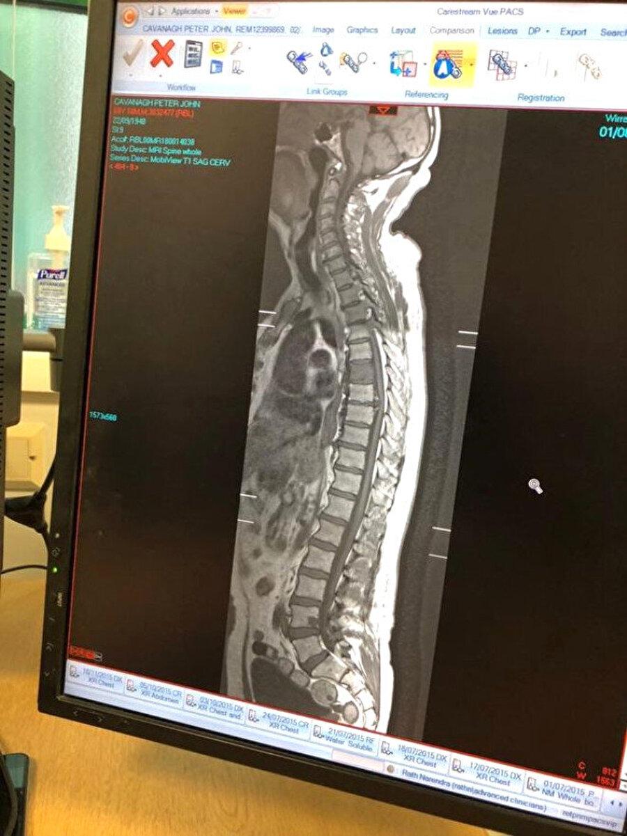 Şoke eden röntgen sonucu!                                      İngiltere'de kanseri nükseden 70 yaşındaki yaşlı adam, röntgen çektirmek için eşiyle birlikte hastanenin yolunu tuttu. Yaşlı adam ve eşi sonuçları görünce, şoke oldu.