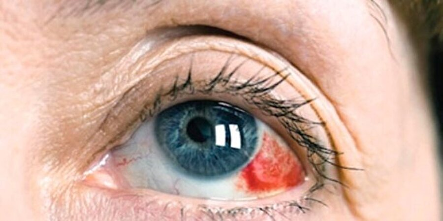 """Göz tansiyonu olan hastalar yan açıları göremiyor  Göz tansiyonu olan hastaların yan noktaları görmekte çok zorlandığını belirten Op. Dr. Hakan Özkan, kişilerin bazen görme kusurlarının farkında olmadıklarını söylüyor. Bu tip vakaların trafikte kazalara yol açabileceğinin altını çizen Op. Dr. Özkan """"Ne yazık ki birçok hasta gözünde ciddi anlamda bir rahatsızlık yaşamadığı sürece göz doktoruna gitmiyor. Ancak bazı görme kusurları hastaların farkında olmadan ilerleyebiliyor ve günlük hayatına zarar verebilecek bir olaya sebep olabiliyor"""" diyor."""