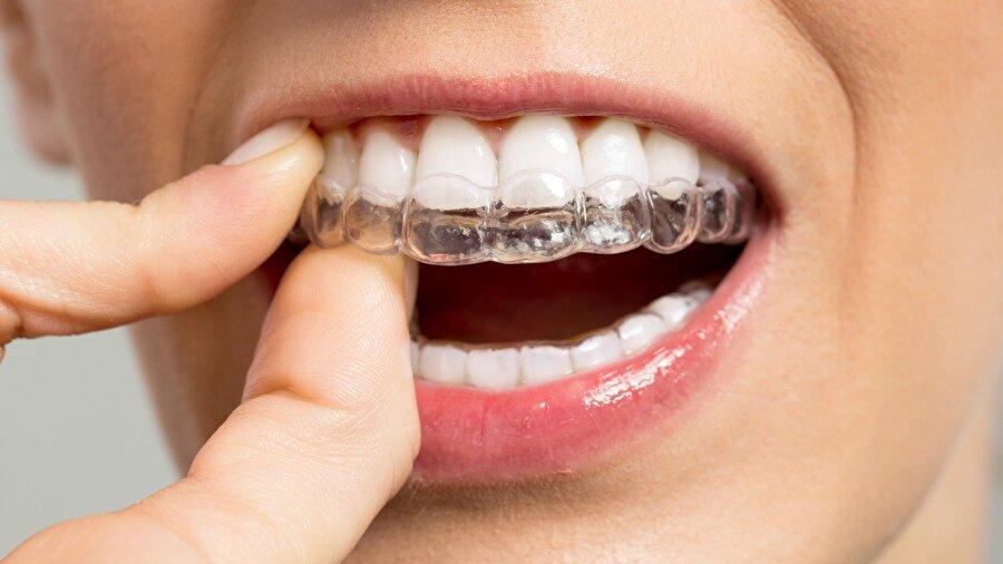 Ortodontist                                      Ortalama maaş: 208.000 Dolarİşsizlik Oranı: 0.9