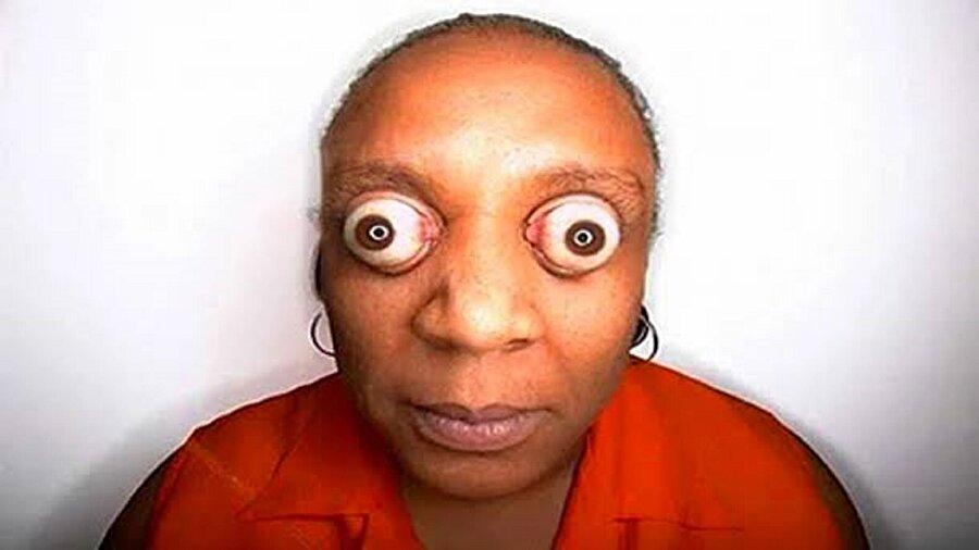 Dünyanın en fazla gözlerini yuvasından 1.2 cm mesafesinde çıkaran kadını Kim Goodman
