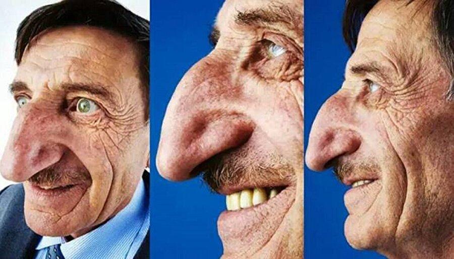 Dünyanın en uzun burunlu adamı bizden biri. Artvinli Mehmet Özyürek ve 8.8 cm burnu