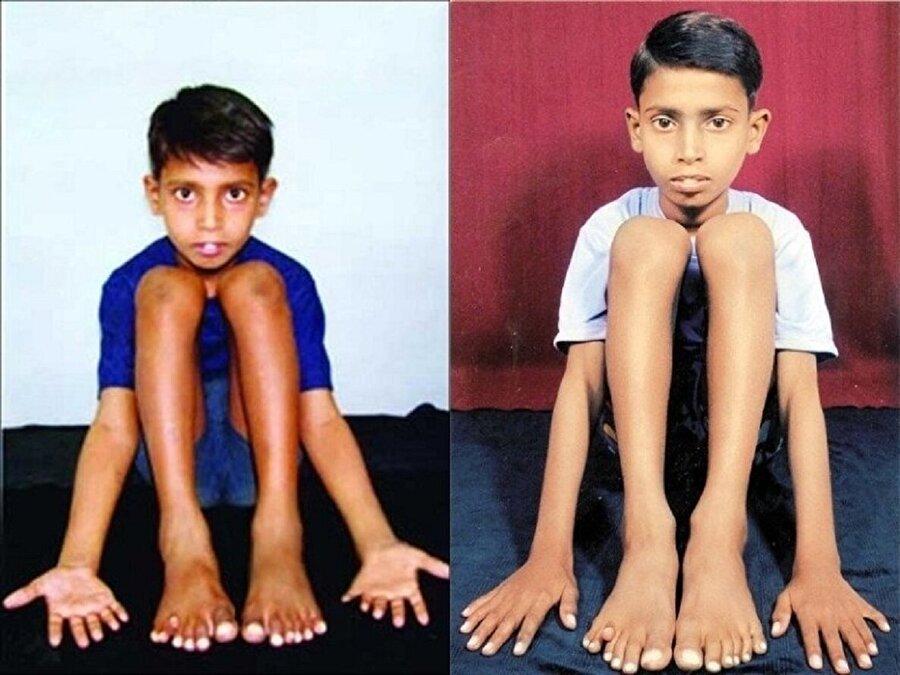 25 parmakla dünyanın en fazla parmağına sahip çocuğu ''Devendra Harne''