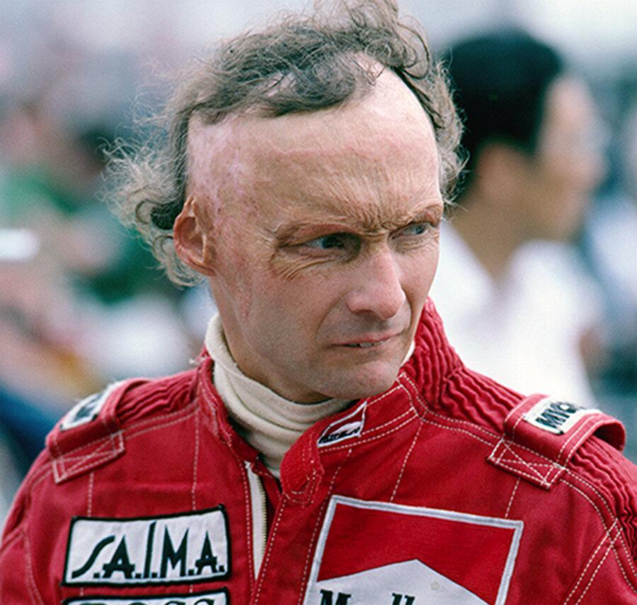 Lauda ve Hunt bu kadar zıt karakterler ve büyük rakipler olmalarına rağmen aralarında aslında güçlü de bir dostluk vardı. Öyle ki; Niki Lauda, yüzünün yandığı yarışın ardından ilk kez kameraların karşısına geçer. Dış görünüşüyle kazadan önce de barışık olmayan ve yakışıklı rakibi James Hunt ile kıyaslanan Lauda için ciddi bir karardır bu.