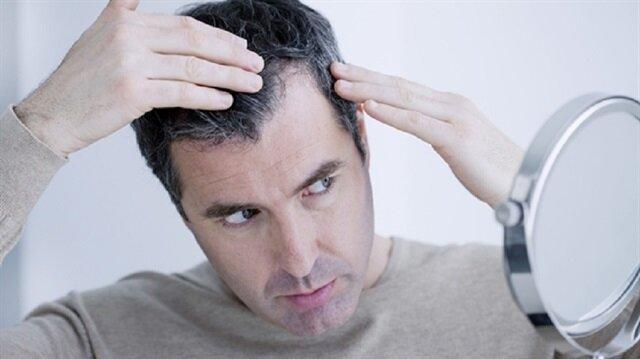 Saçı dökülenler dikkat: Nedeni bunlar olabilir