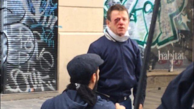 Fransız polisi gözünden vurdu