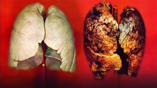 Akciğer kanseri sinsi gelişiyor