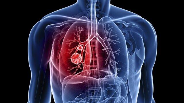 Bu belirtiler akciğer kanserini işaret ediyor