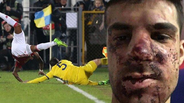 Ünlü futbolcuyu tekme tokat dövdüler: Tanınmayacak halde