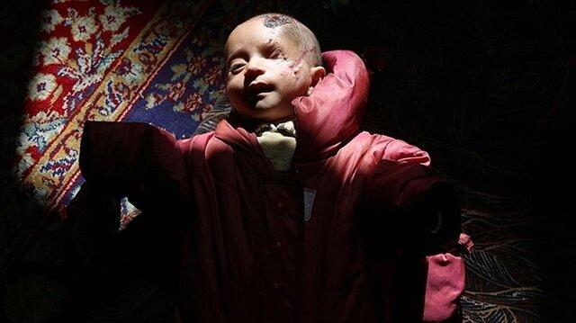 Doğu Guta ablukasının sembol ismi Kerim bebeğe sosyal medyada destek çığ gibi