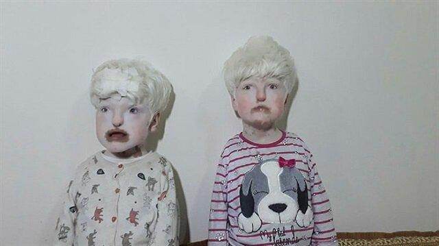 Albinizm hastası kardeşler duymuyor ve konuşmuyorlar