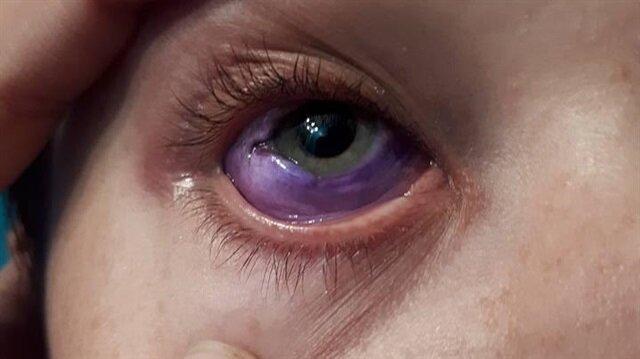 Göz rengini değiştirmek istedi, şimdi körlük riskiyle karşı karşıya!