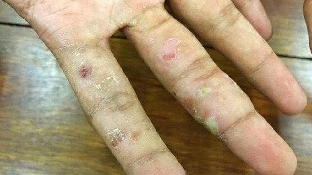 Lupus hastalığı nasıl tedavi edilir, neden olur?