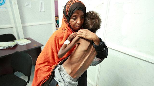 Yemen büyük bir krizle karşı karşıya